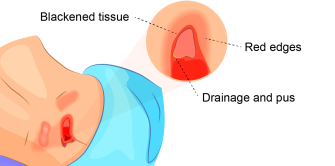 A graphic showing the symptoms of stage 3 bedsores. Common symptoms include blackened tissue, red edges, drainage, and pus.